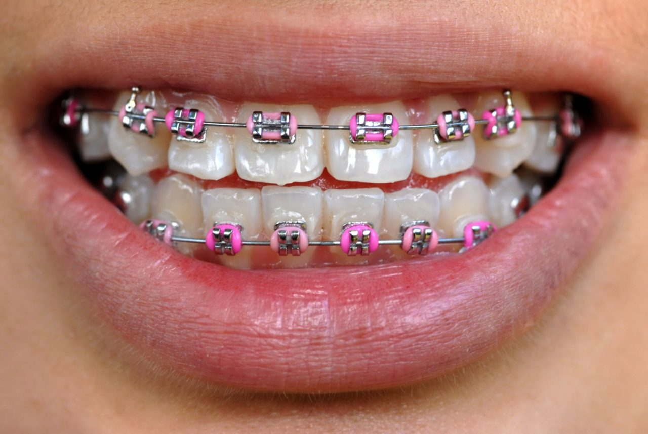 teen with pink braces